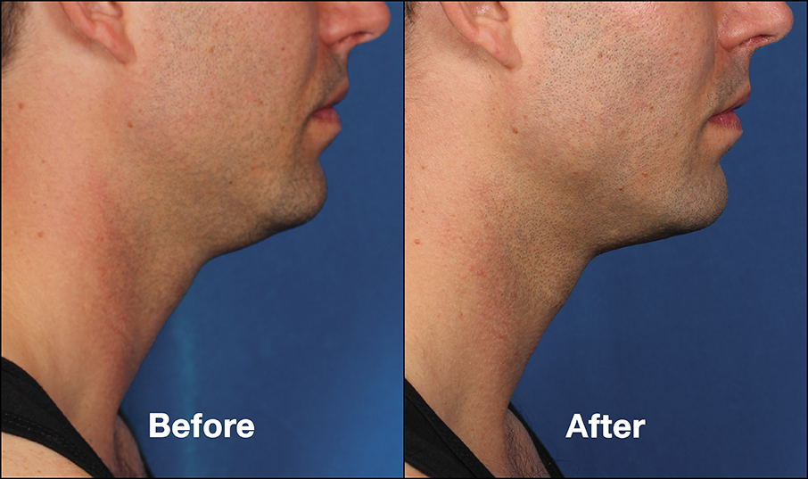 Kybella for Men