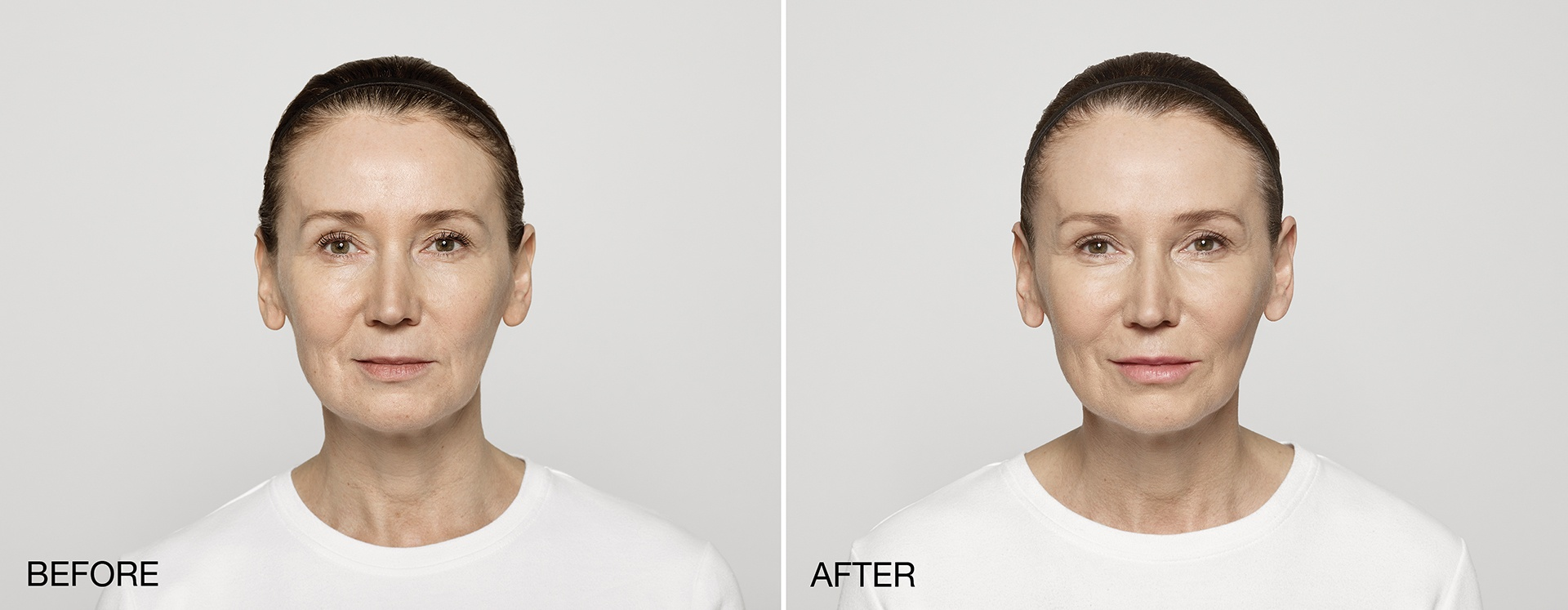 Restylane Lyft before after