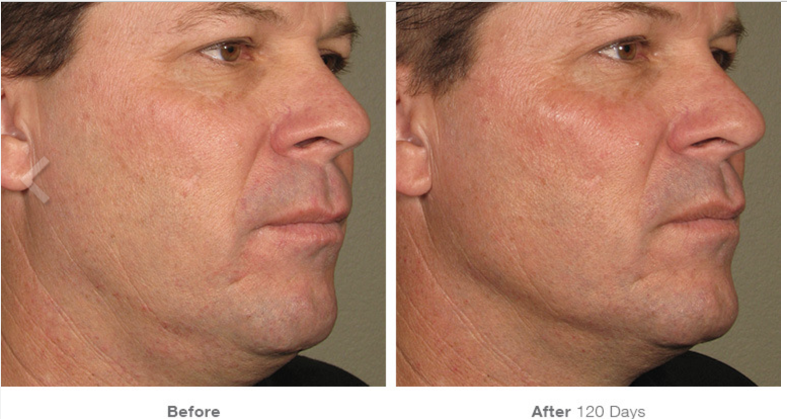Ultherapy Before - After 10.png