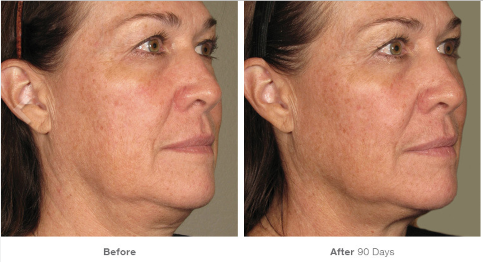 Ultherapy Before - After 3.png