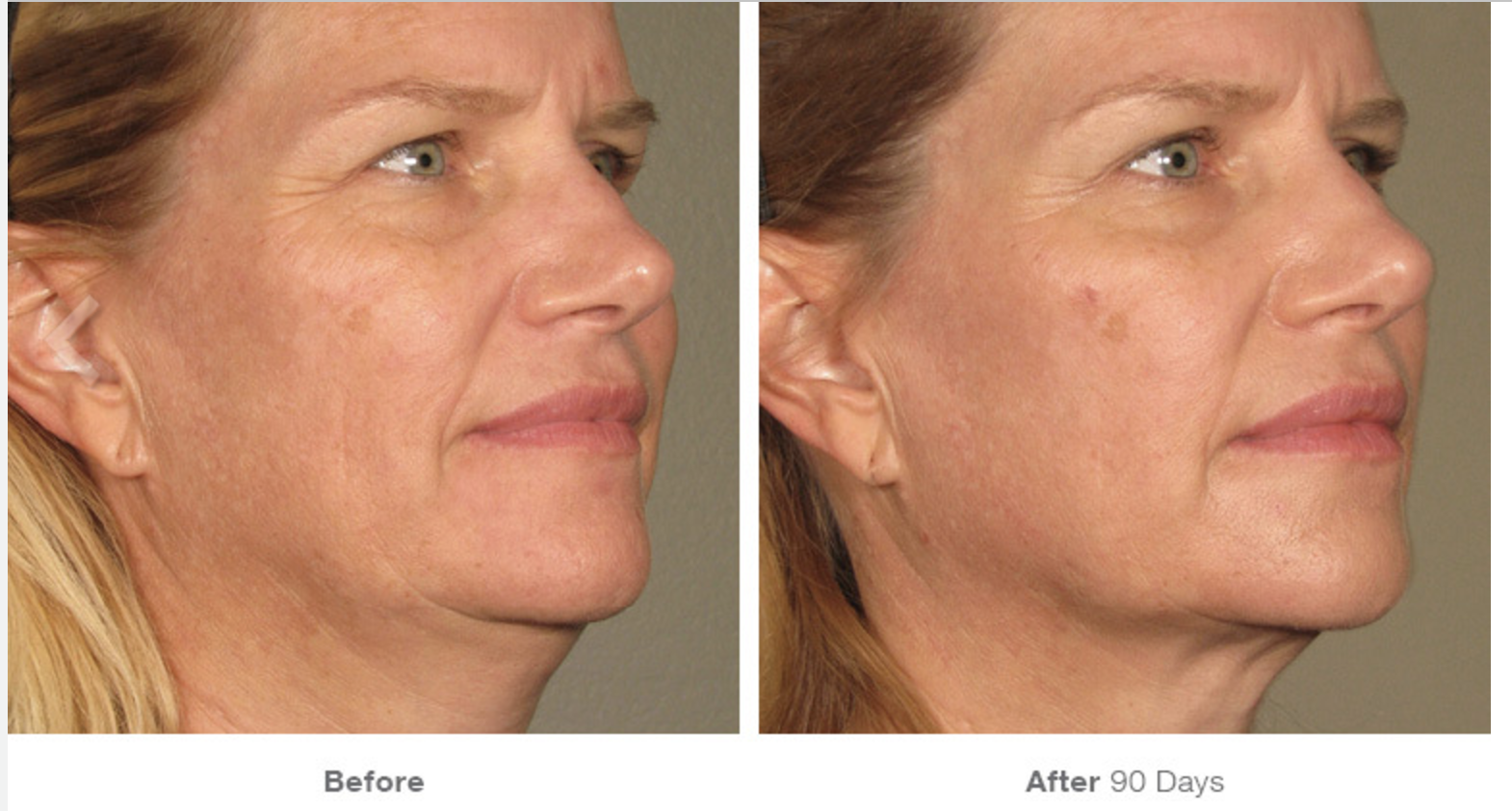 Ultherapy Before - After 4.png