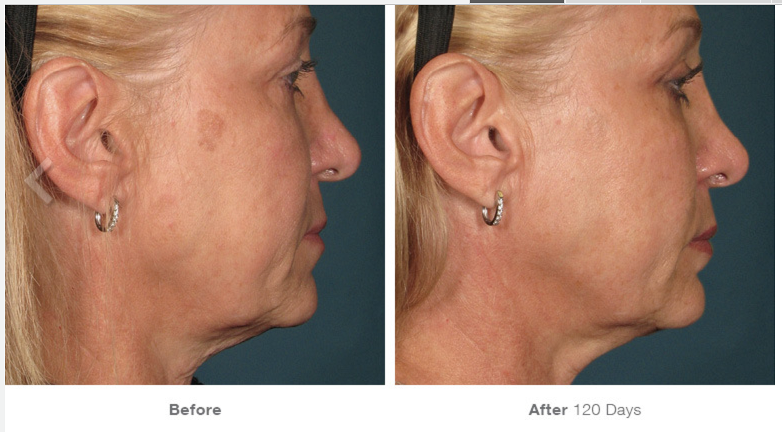 Ultherapy Before - After 5.png