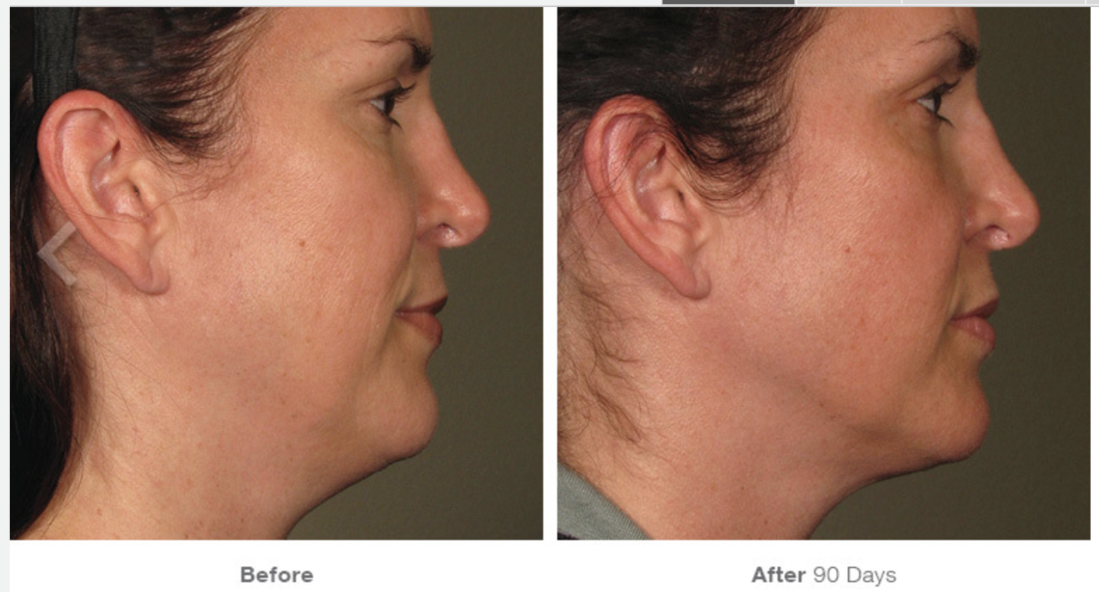Ultherapy Before - After 6.png