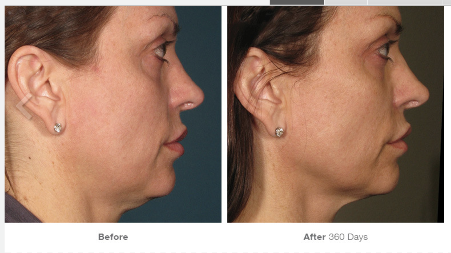 Ultherapy Before - After 7.png