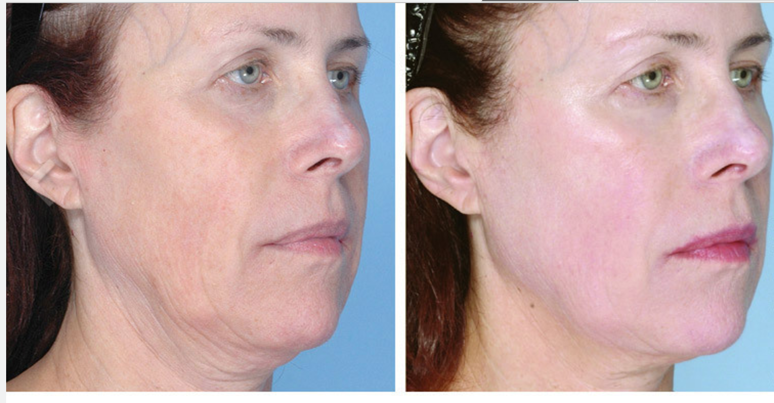 Ultherapy Before - After 8.png