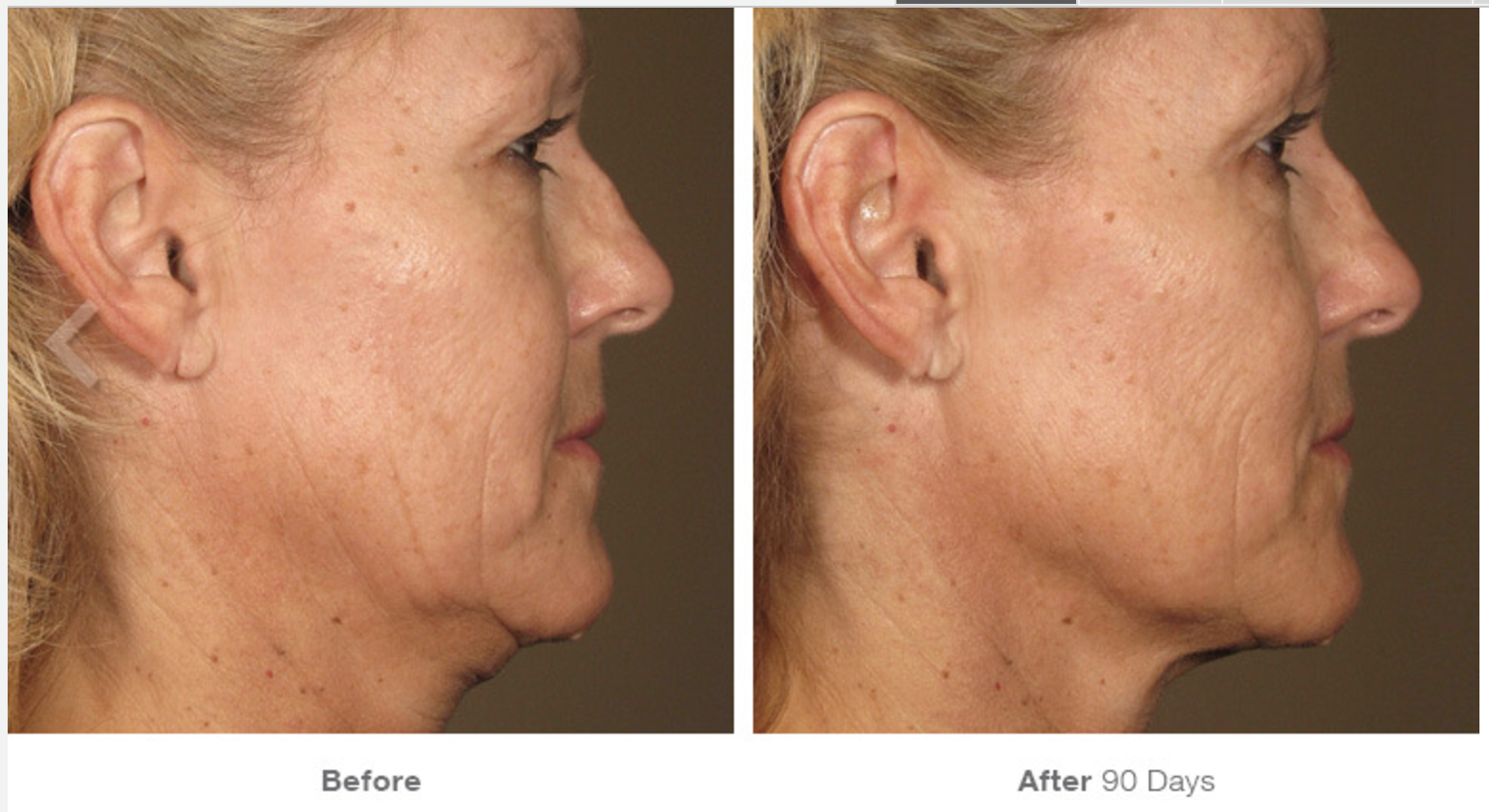 Ultherapy Before - After 9.png