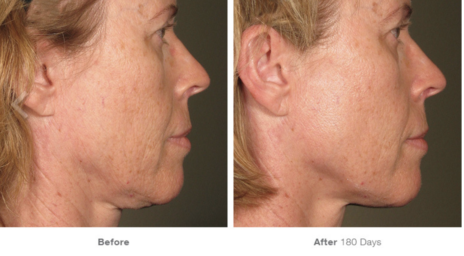 Ultherapy Before-After 1.png