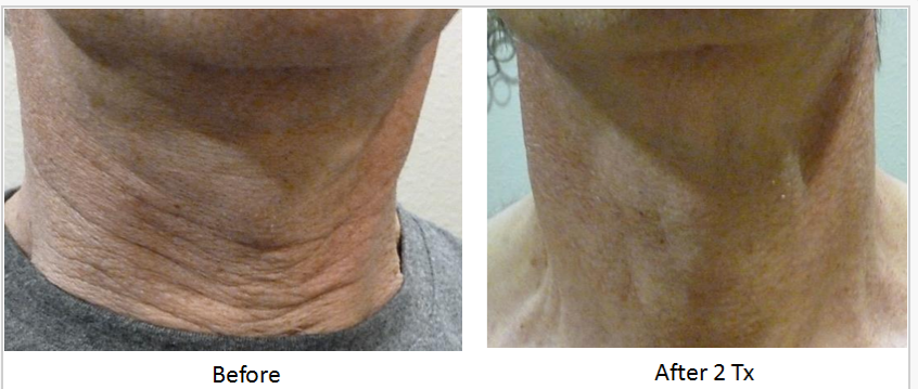 Skin_Tightening_Before_After_3.png