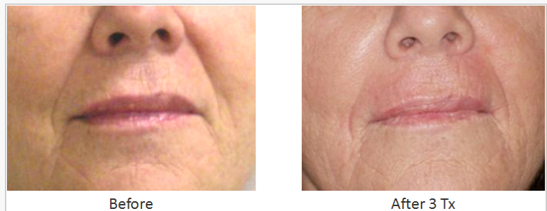 Skin_Tightening_Before_After_4.png