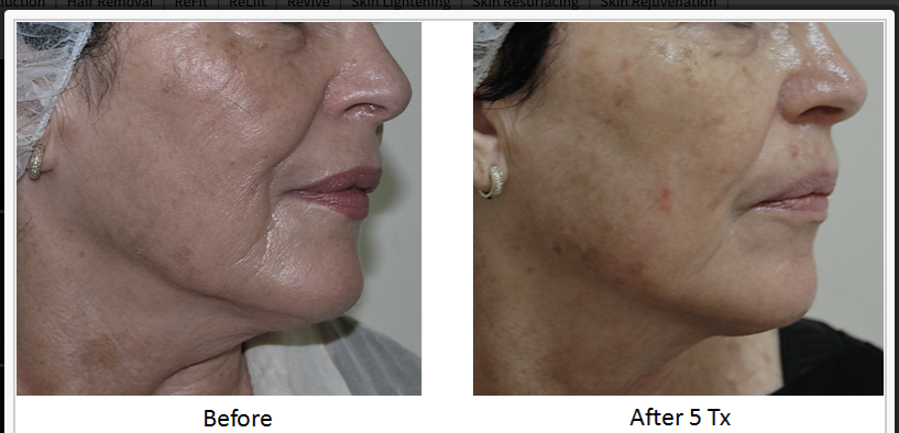 Skin_Tightening_Before_After_5.png