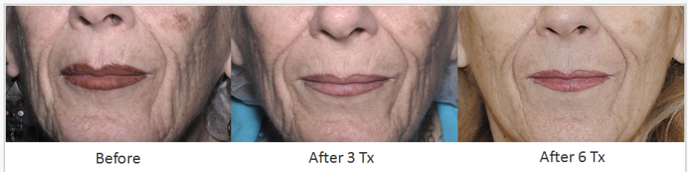 Skin_Tightening_Before_After_6.png