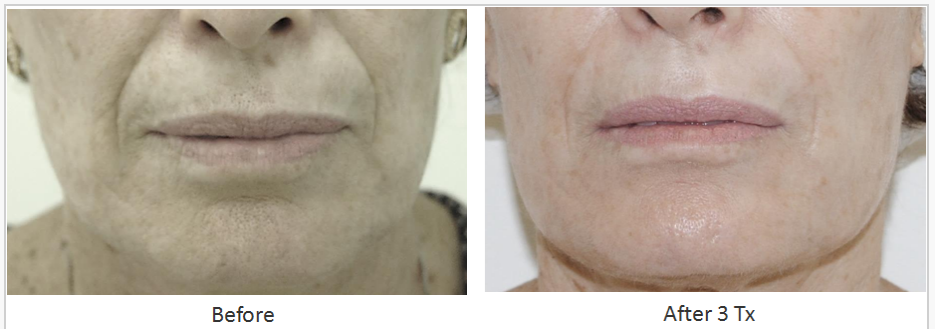 Skin_Tightening_Before_After_7.png