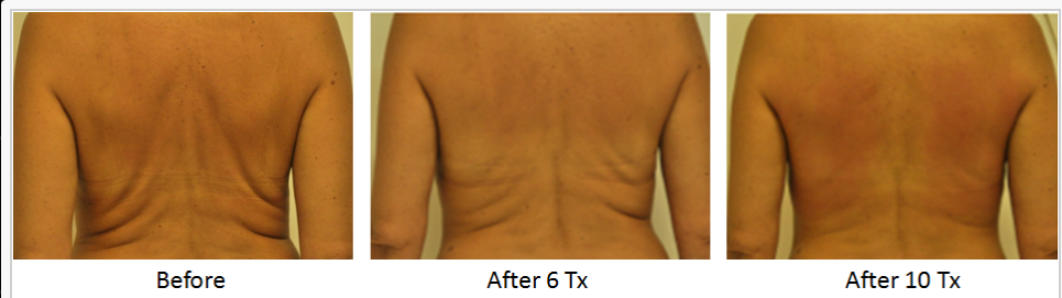 RF_Body_Contouring_Before_After_2.png