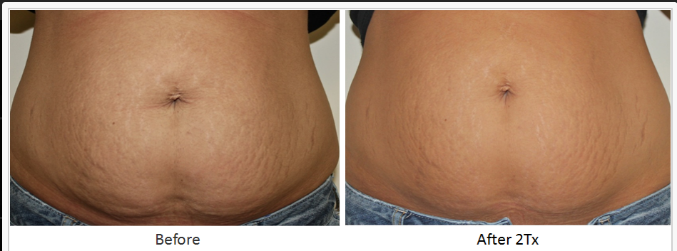 RF_Body_Contouring_Before_After_6.png
