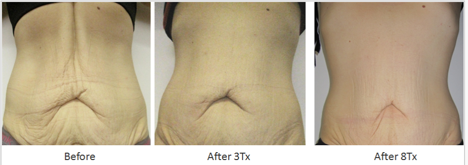 RF_Body_Contouring_Before_After_8.png
