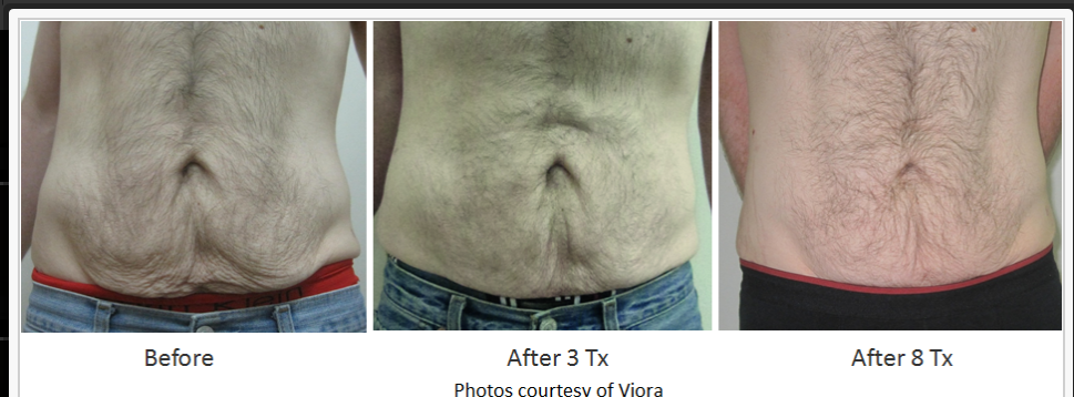 RF_Body_Contouring_Before_After_9.png