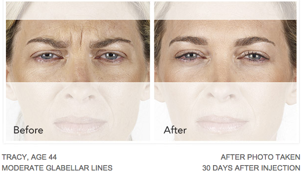 Xeomin before-after pictures